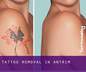 Tattoo Removal in Antrim