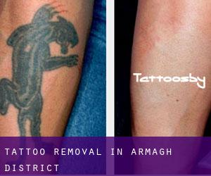 Tattoo Removal in Armagh District