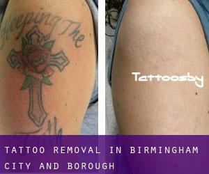Tattoo Removal in Birmingham (City and Borough)