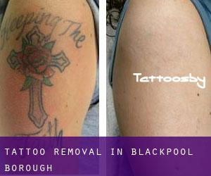 Tattoo Removal in Blackpool (Borough)