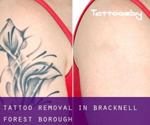 Tattoo Removal in Bracknell Forest (Borough)