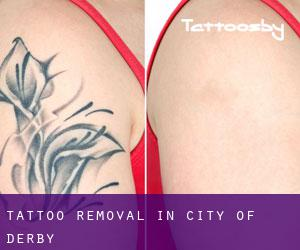 Tattoo Removal in City of Derby