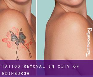 Tattoo Removal in City of Edinburgh