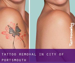 Tattoo Removal in City of Portsmouth