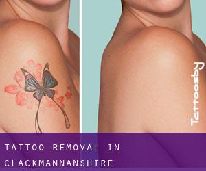 Tattoo Removal in Clackmannanshire