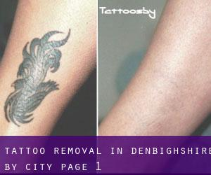 Tattoo Removal in Denbighshire by city - page 1