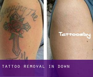 Tattoo Removal in Down