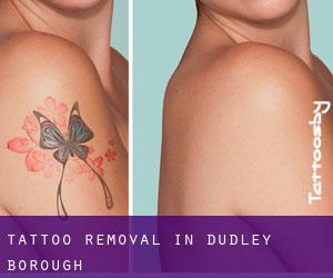 Tattoo Removal in Dudley (Borough)