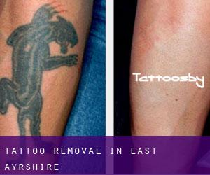 Tattoo Removal in East Ayrshire
