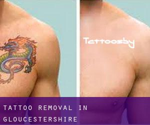 Tattoo Removal in Gloucestershire