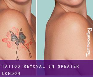 Tattoo Removal in Greater London