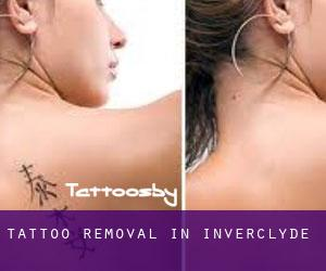 Tattoo Removal in Inverclyde