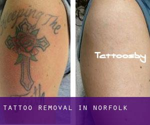 Tattoo Removal in Norfolk
