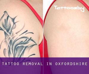Tattoo Removal in Oxfordshire