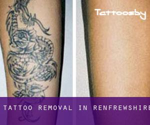 Tattoo Removal in Renfrewshire