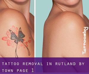 Tattoo Removal in Rutland by town - page 1