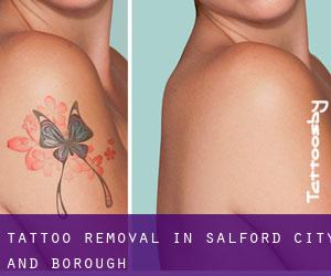 Tattoo Removal in Salford (City and Borough)