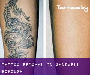 Tattoo Removal in Sandwell (Borough)
