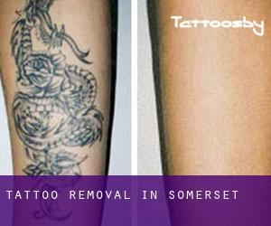Tattoo Removal in Somerset