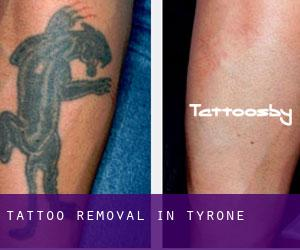 Tattoo Removal in Tyrone