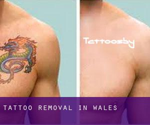 Tattoo Removal in Wales