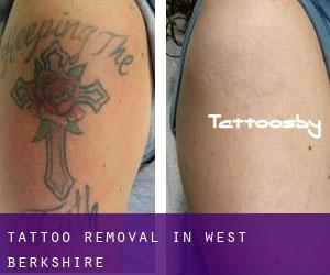 Tattoo Removal in West Berkshire