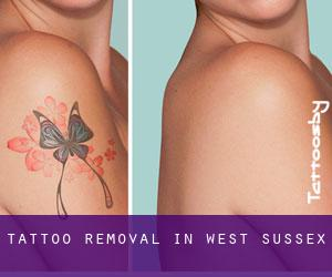 Tattoo Removal in West Sussex