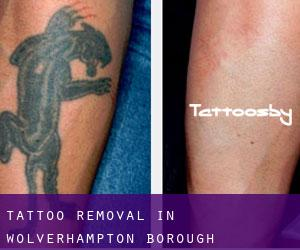 Tattoo Removal in Wolverhampton (Borough)